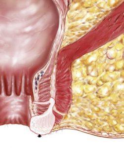 anatomie-fistule-anale