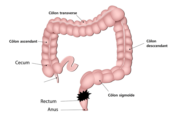 cancer-rectum