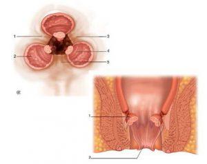 Hémorroidectomie-classique