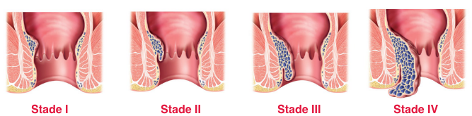 stades-hemorroides